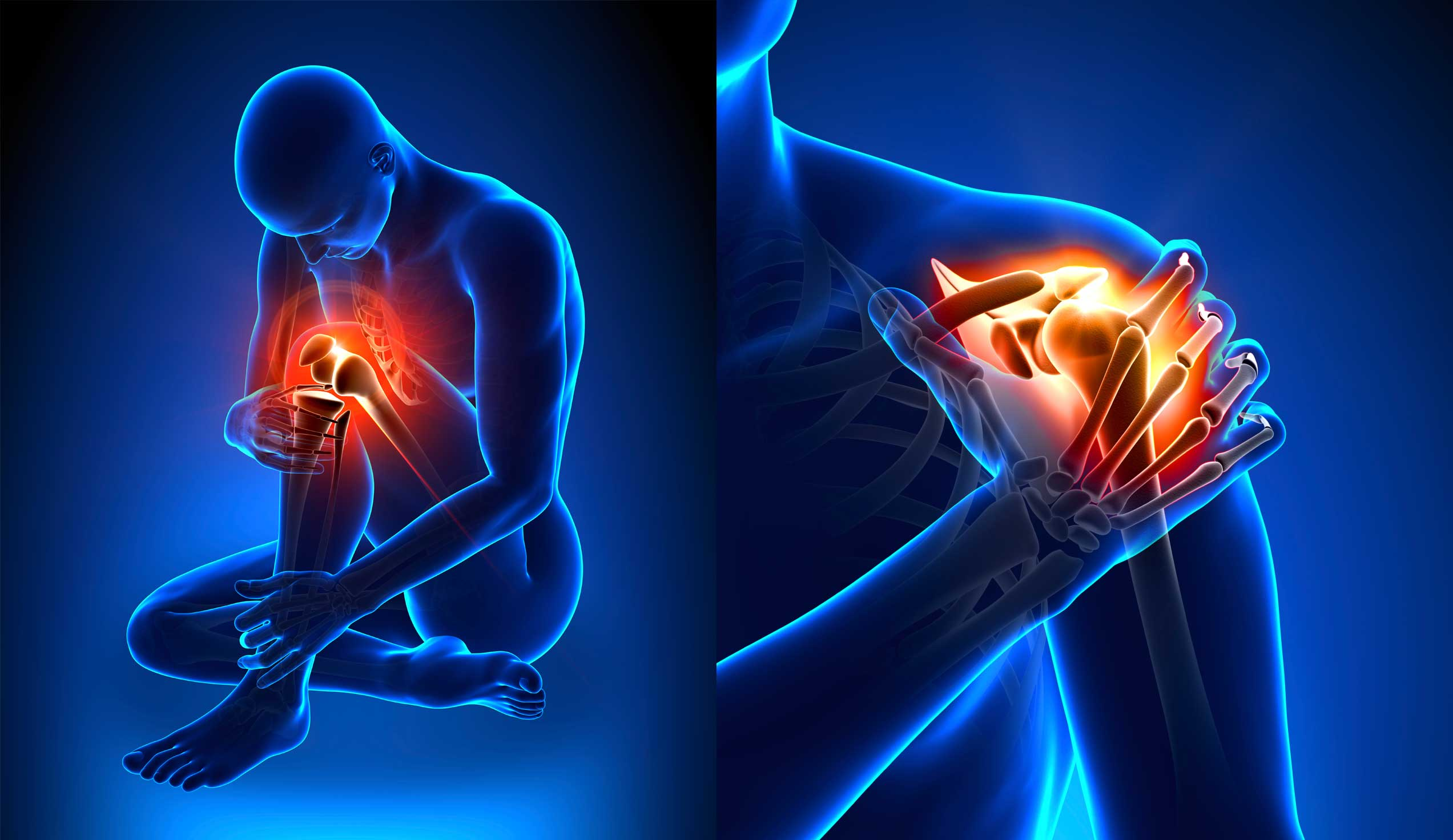 natural painkillers, pain killer, inflammation